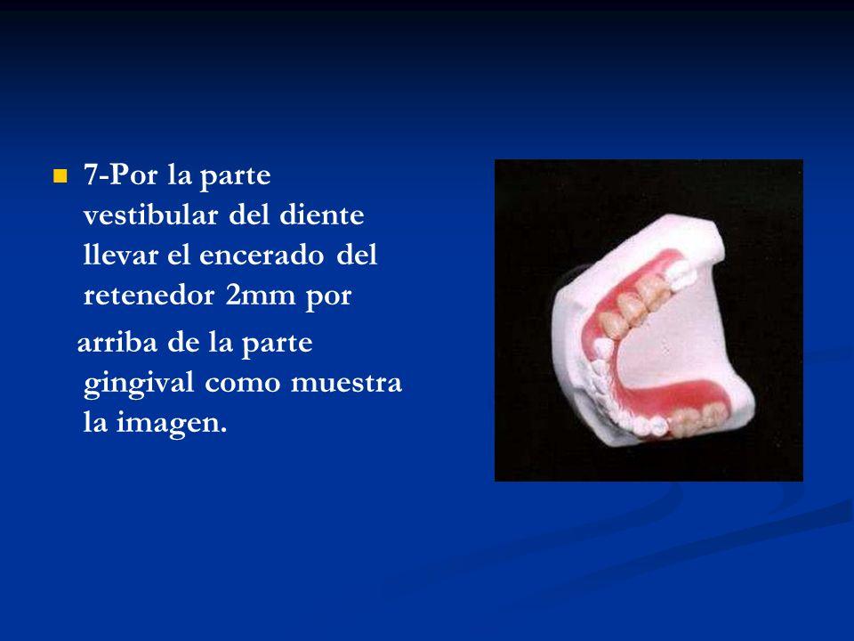 8-Luego terminado el encerado recortar los dientes hasta su encerado, para que éste no sea retenido en la mufla.