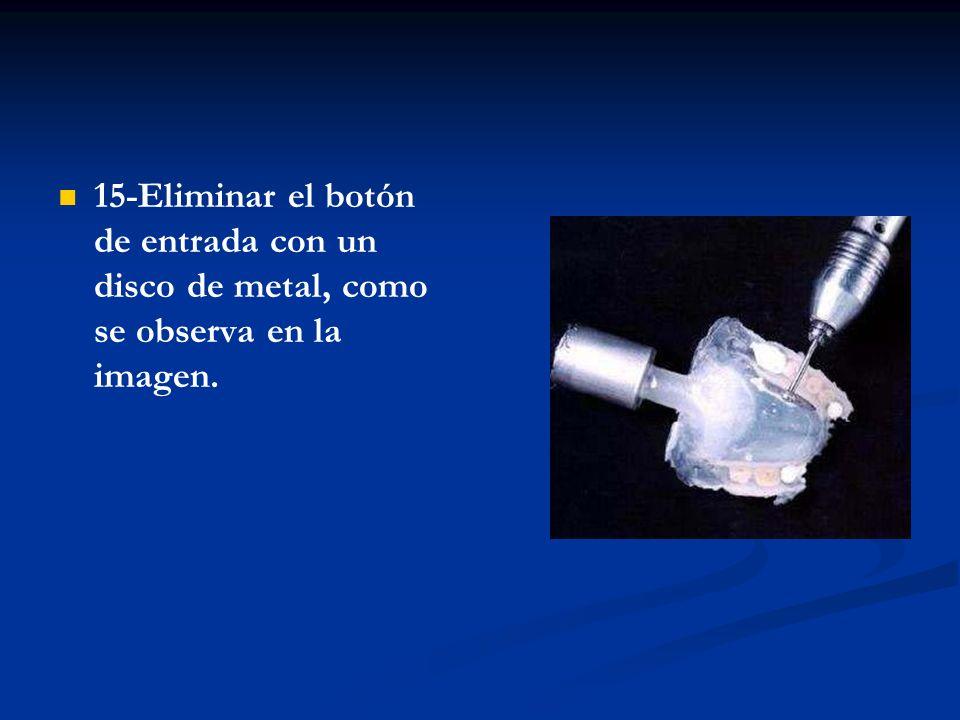 16-Una vez eliminado el botón de entrada, proceda al pulido de la prótesis con una piedra de acrílico o fresón, como muestra la imagen.
