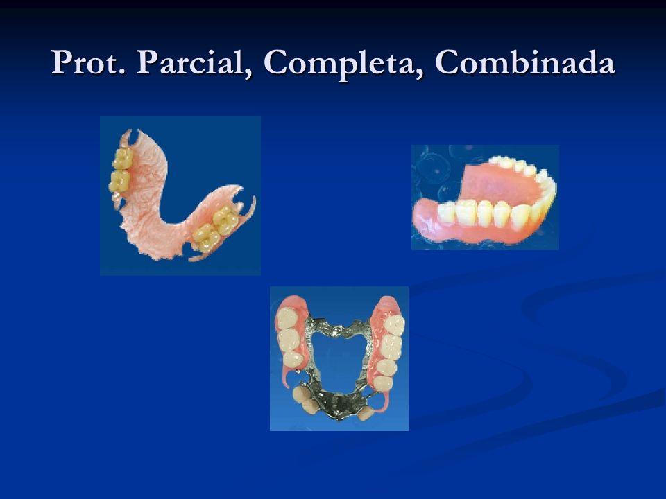 Tecnología de inyección que necesita el laboratorio dental Equipamiento, Inyectora.