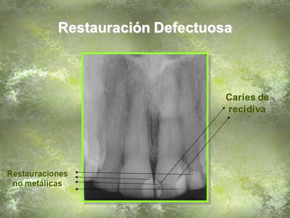 Restauración Defectuosa Caries de recidiva Restauraciones no metálicas