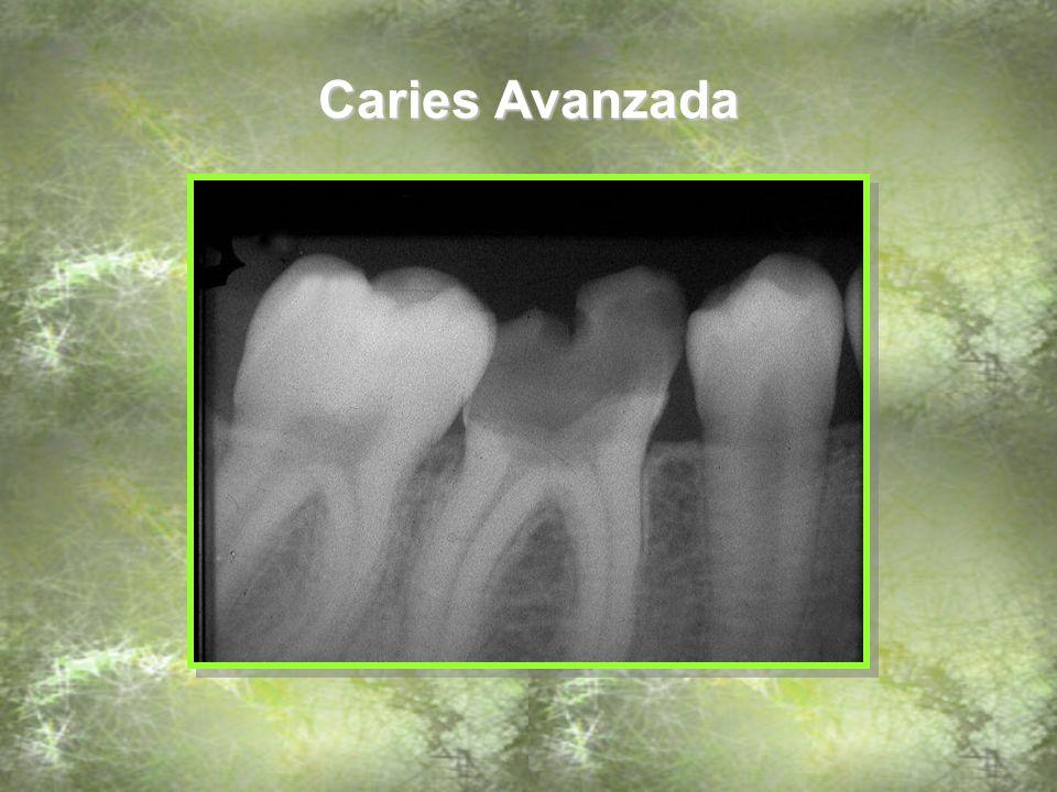 Restauraciones metálicas Observe la restauración defectuosa a este nivel Restauraciones metálicas (Bandas de ortodoncia)