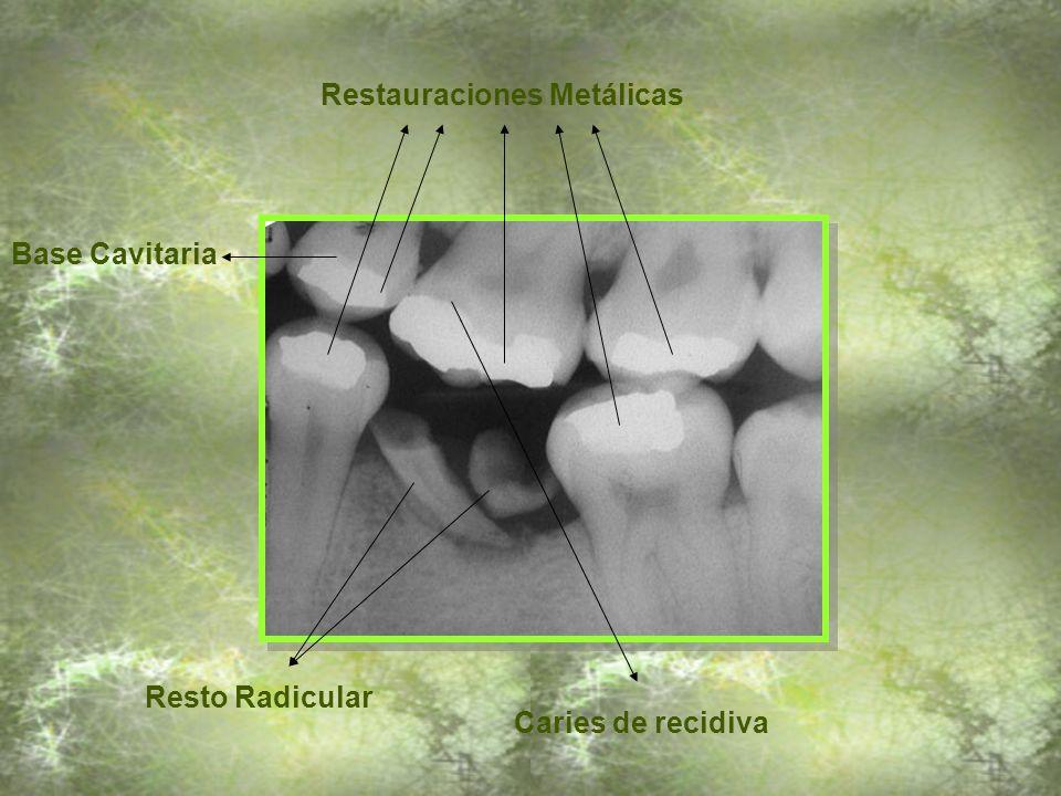 Resorción Radicular Interna (Observe la pérdida de continuidad de las paredes del conducto) Pérdida de sustancia calcificada Base Cavitaria