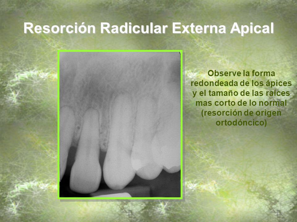 Resorción Radicular Externa Apical Observe la forma redondeada de los ápices y el tamaño de las raíces mas corto de lo normal (Resorción de origen ortodóncico)