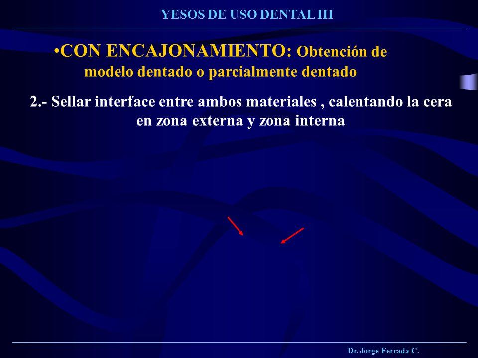 Dr. Jorge Ferrada C. YESOS DE USO DENTAL III CON ENCAJONAMIENTO: Obtención de modelo dentado o parcialmente dentado 2.- Sellar interface entre ambos m