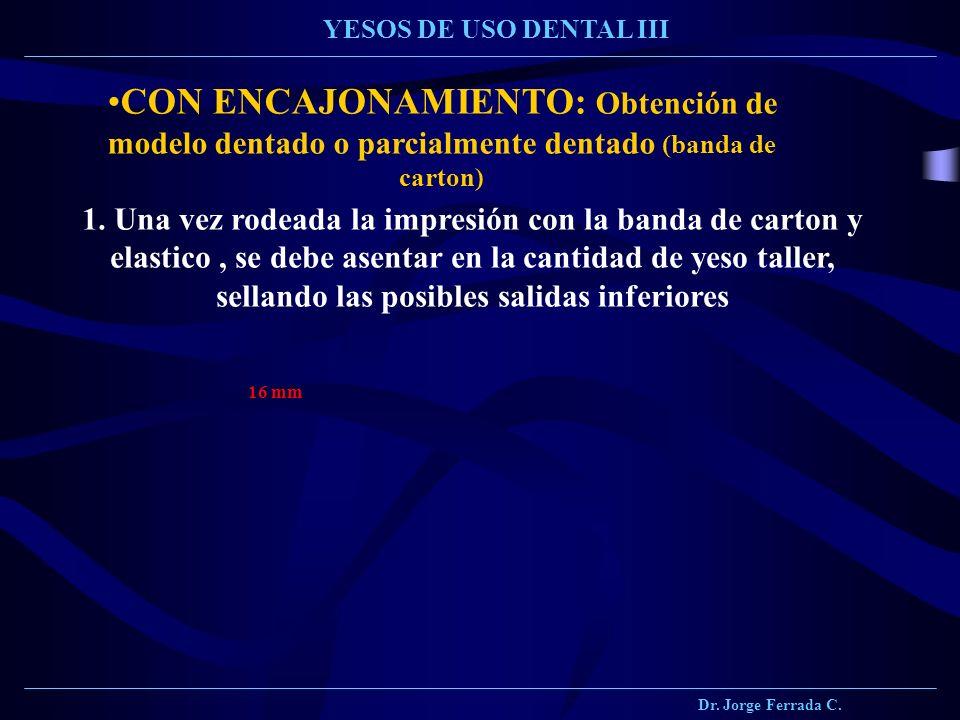 Dr. Jorge Ferrada C. YESOS DE USO DENTAL III CON ENCAJONAMIENTO: Obtención de modelo dentado o parcialmente dentado (banda de carton) 1. Una vez rodea
