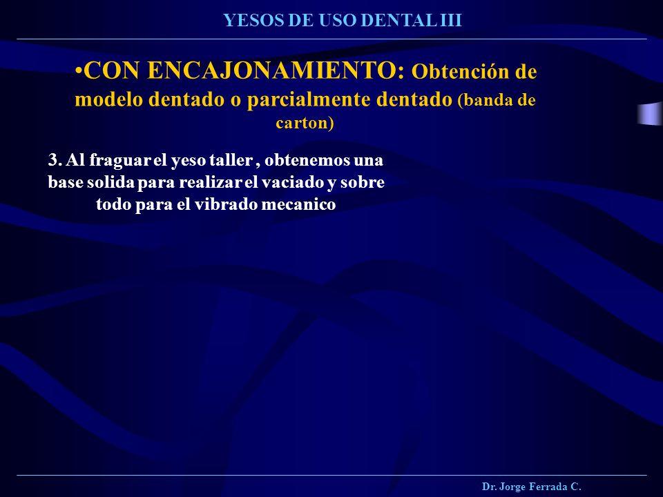 Dr. Jorge Ferrada C. YESOS DE USO DENTAL III CON ENCAJONAMIENTO: Obtención de modelo dentado o parcialmente dentado (banda de carton) 3. Al fraguar el