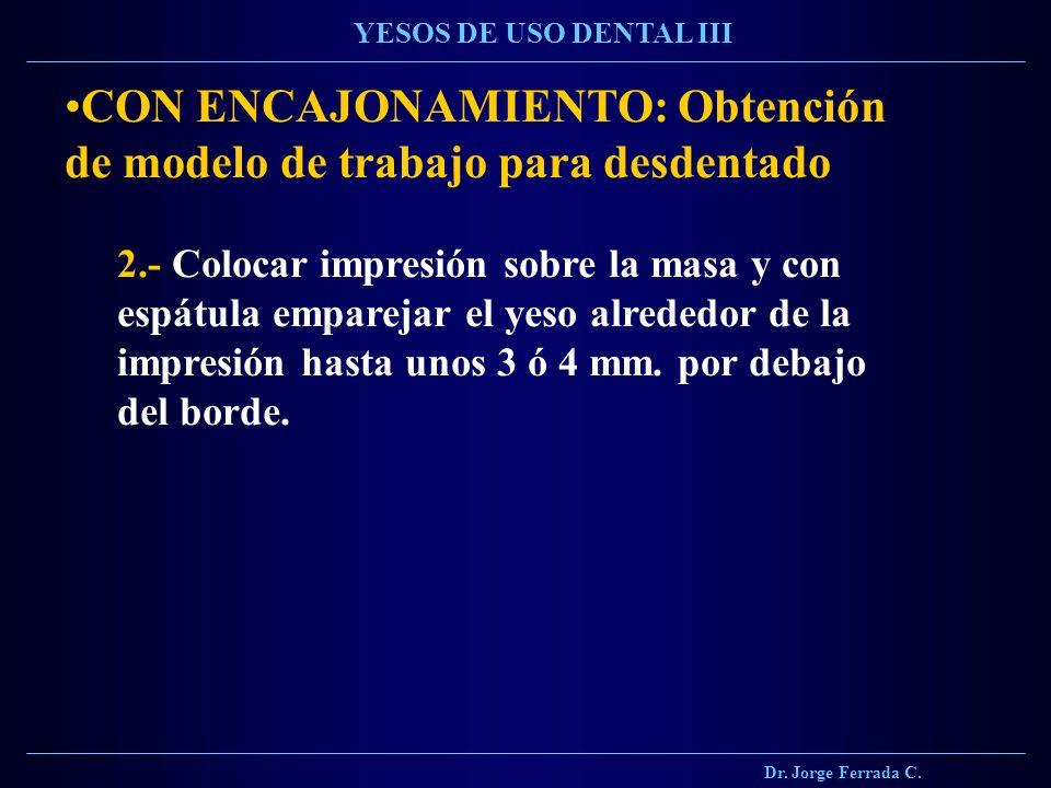 Dr. Jorge Ferrada C. YESOS DE USO DENTAL III CON ENCAJONAMIENTO: Obtención de modelo de trabajo para desdentado 2.- Colocar impresión sobre la masa y