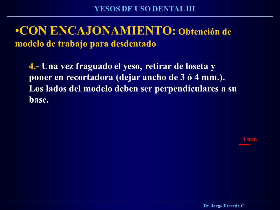 Dr. Jorge Ferrada C. YESOS DE USO DENTAL III CON ENCAJONAMIENTO: Obtención de modelo de trabajo para desdentado 4.- Una vez fraguado el yeso, retirar