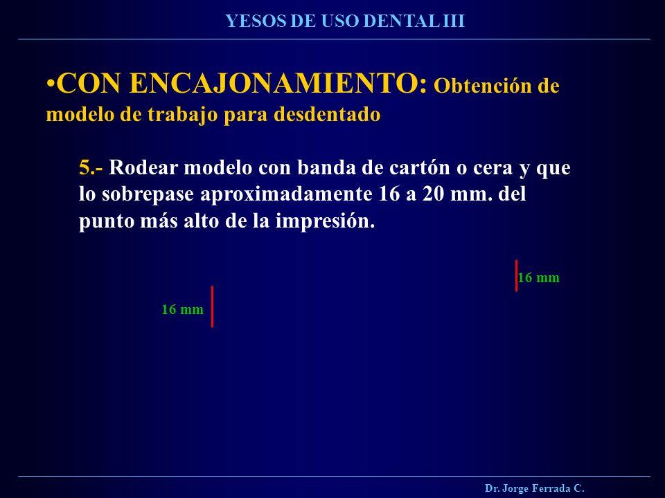 Dr. Jorge Ferrada C. YESOS DE USO DENTAL III CON ENCAJONAMIENTO: Obtención de modelo de trabajo para desdentado 5.- Rodear modelo con banda de cartón