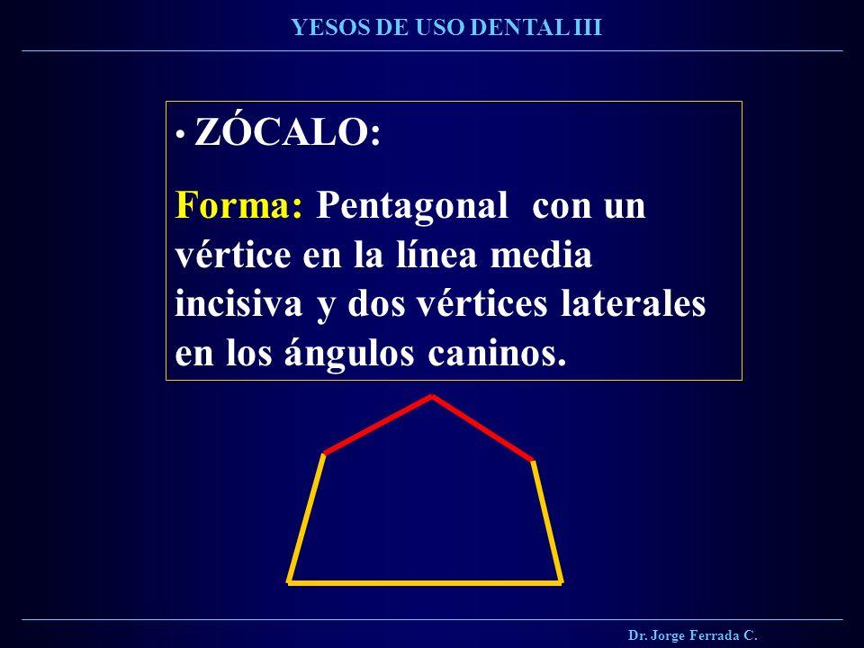 Dr. Jorge Ferrada C. YESOS DE USO DENTAL III ZÓCALO: Forma: Pentagonal con un vértice en la línea media incisiva y dos vértices laterales en los ángul
