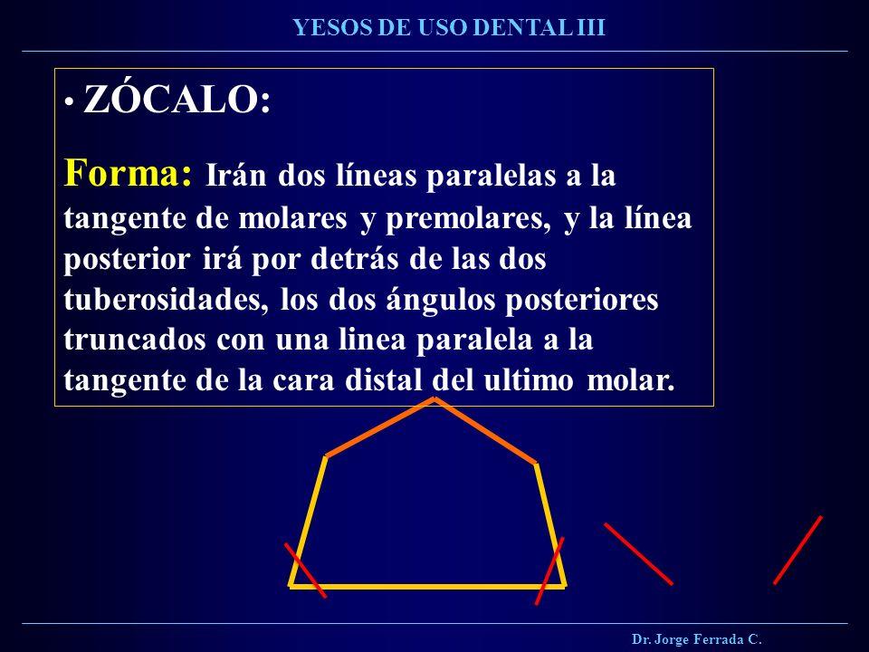 Dr. Jorge Ferrada C. YESOS DE USO DENTAL III ZÓCALO: Forma: Irán dos líneas paralelas a la tangente de molares y premolares, y la línea posterior irá