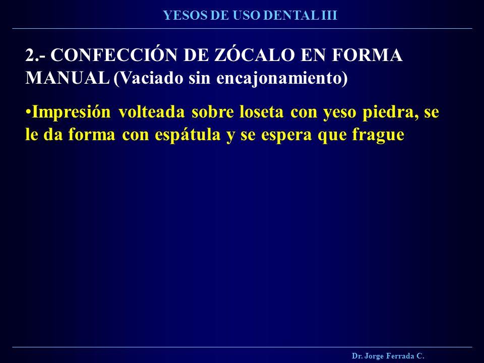Dr. Jorge Ferrada C. YESOS DE USO DENTAL III 2.- CONFECCIÓN DE ZÓCALO EN FORMA MANUAL (Vaciado sin encajonamiento) Impresión volteada sobre loseta con