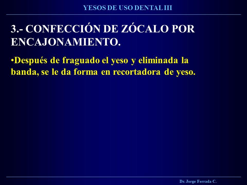 Dr. Jorge Ferrada C. YESOS DE USO DENTAL III 3.- CONFECCIÓN DE ZÓCALO POR ENCAJONAMIENTO. Después de fraguado el yeso y eliminada la banda, se le da f
