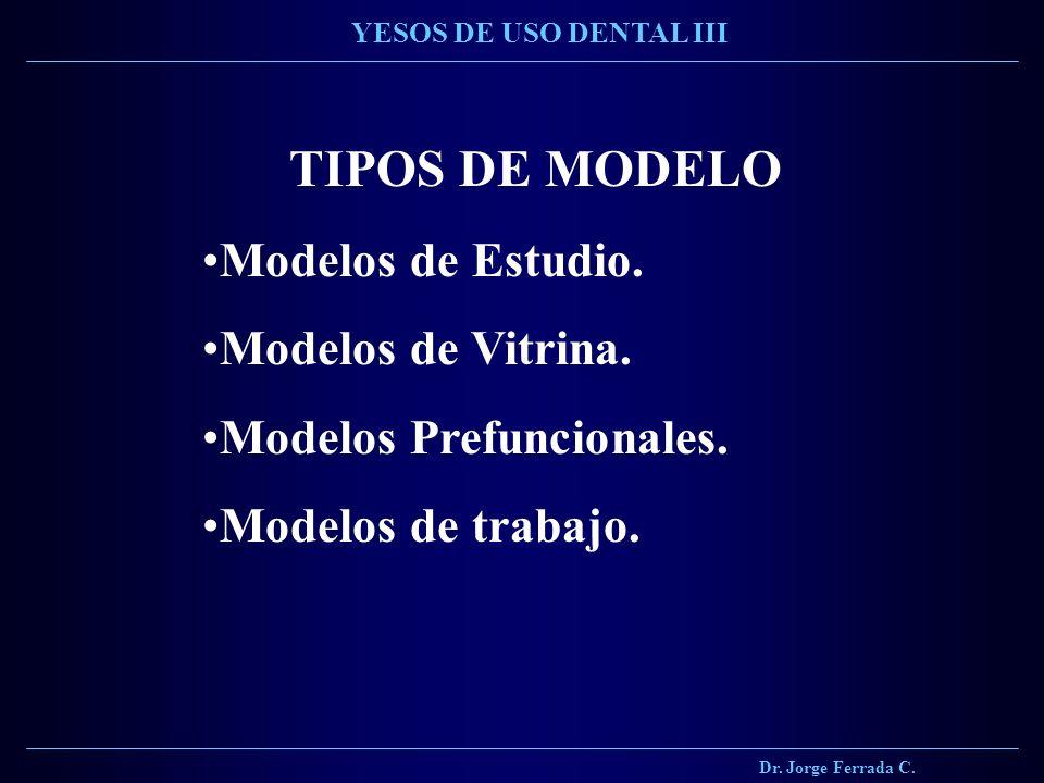 TIPOS DE MODELO Modelos de Estudio. Modelos de Vitrina. Modelos Prefuncionales. Modelos de trabajo. Dr. Jorge Ferrada C. YESOS DE USO DENTAL III