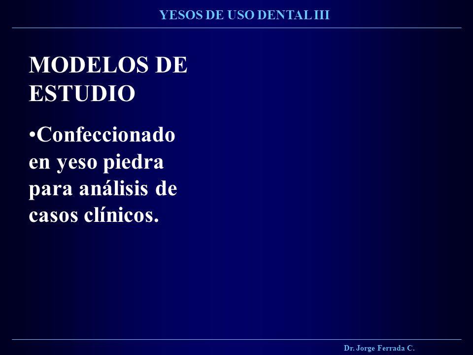 Dr. Jorge Ferrada C. YESOS DE USO DENTAL III MODELOS DE ESTUDIO Confeccionado en yeso piedra para análisis de casos clínicos.