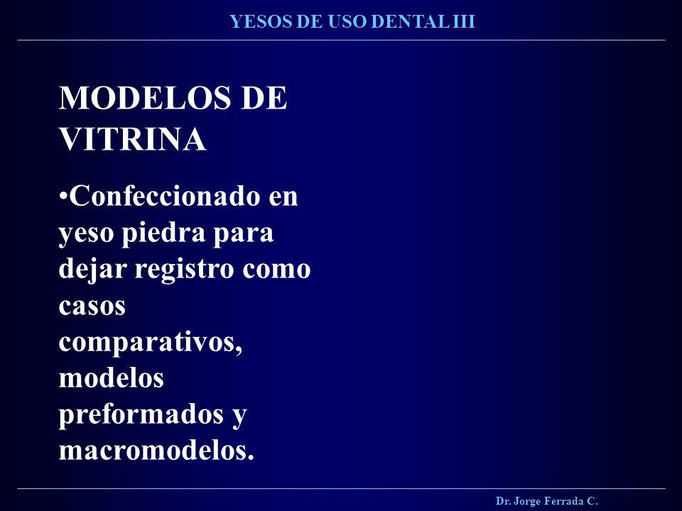 Dr. Jorge Ferrada C. YESOS DE USO DENTAL III MODELOS DE VITRINA Confeccionado en yeso piedra para dejar registro como casos comparativos, modelos pref
