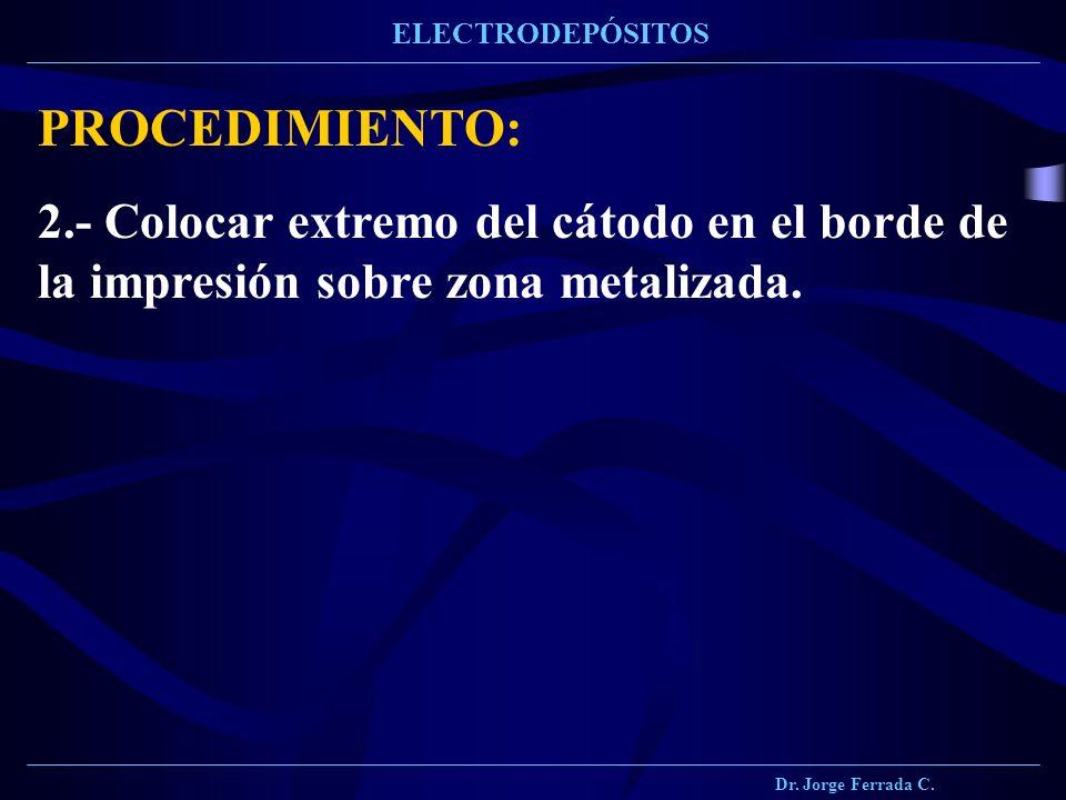 Dr. Jorge Ferrada C. ELECTRODEPÓSITOS PROCEDIMIENTO: 2.- Colocar extremo del cátodo en el borde de la impresión sobre zona metalizada.