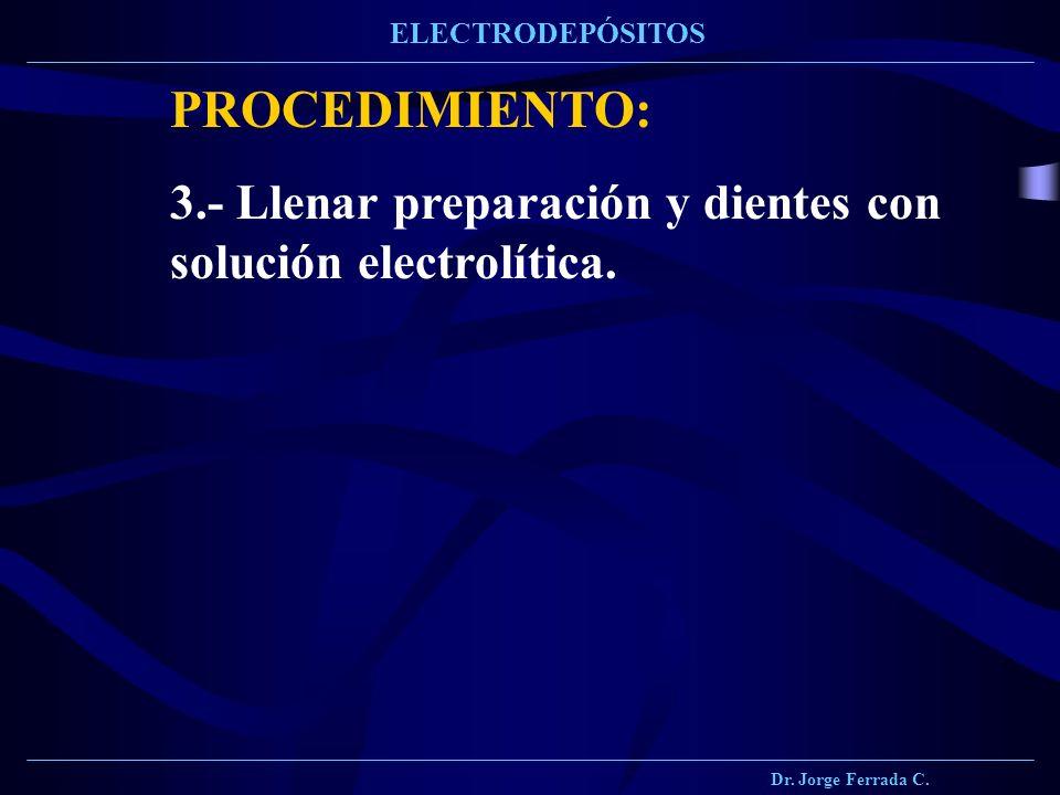 Dr. Jorge Ferrada C. ELECTRODEPÓSITOS PROCEDIMIENTO: 3.- Llenar preparación y dientes con solución electrolítica.
