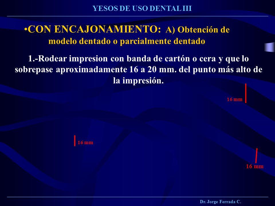 Dr. Jorge Ferrada C. YESOS DE USO DENTAL III CON ENCAJONAMIENTO: A) Obtención de modelo dentado o parcialmente dentado 1.-Rodear impresion con banda d