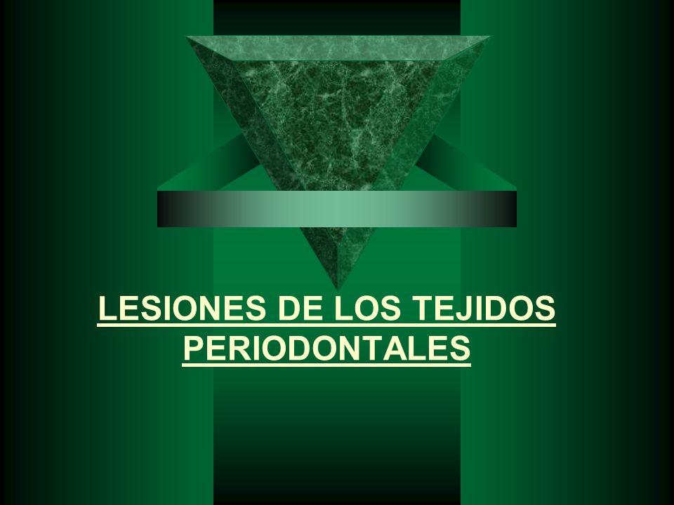 TIPOS DE LUXACIÓN 1. CONCUSIÓN 2. SUBLUXACIÓN 3. INTRUSIÓN 4. EXTRUSIÓN 5. AVULSION