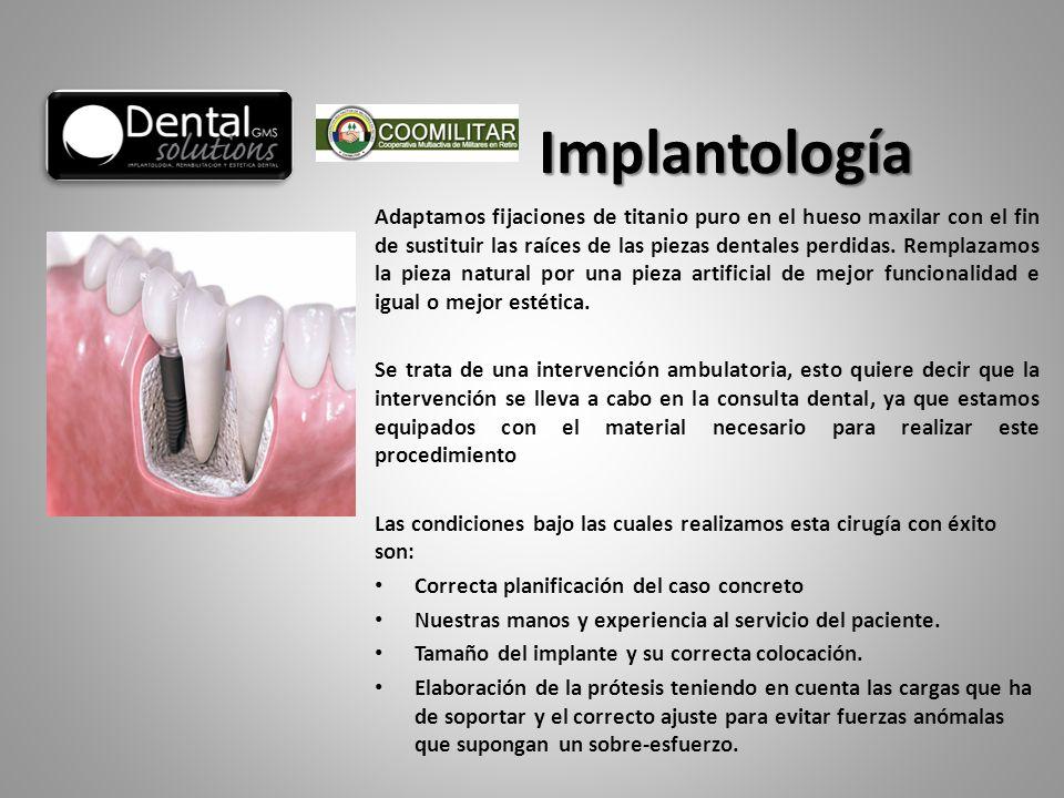 Adaptamos fijaciones de titanio puro en el hueso maxilar con el fin de sustituir las raíces de las piezas dentales perdidas. Remplazamos la pieza natu