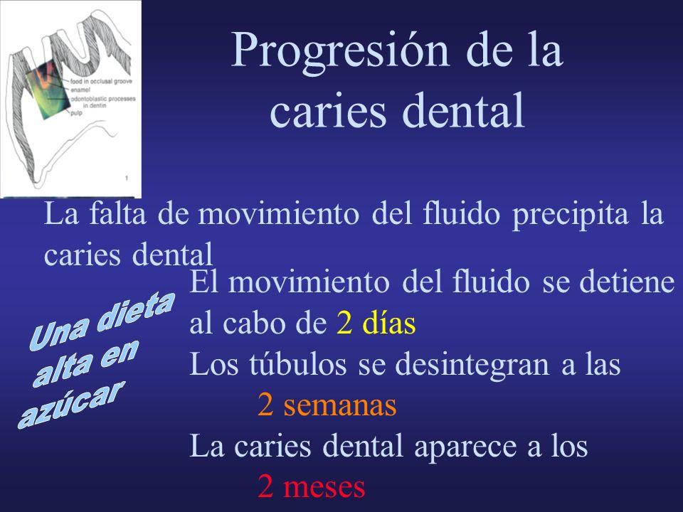 La falta de movimiento del fluido precipita la caries dental Progresión de la caries dental El movimiento del fluido se detiene al cabo de 2 días Los