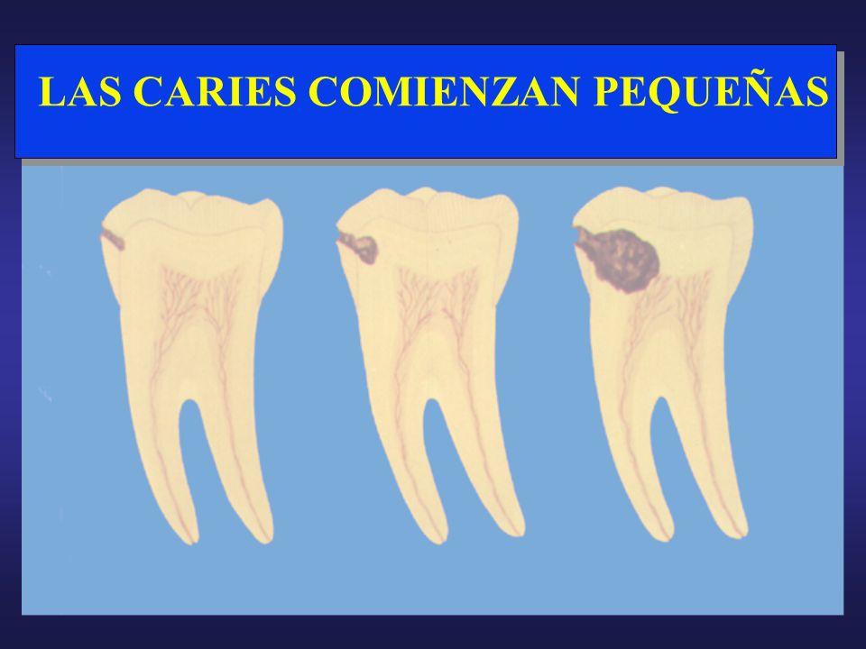Las bacterias son la causa de la caries dental Los alimentos nutren las bacterias