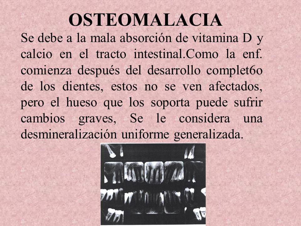 OSTEOMALACIA Se debe a la mala absorción de vitamina D y calcio en el tracto intestinal.Como la enf.