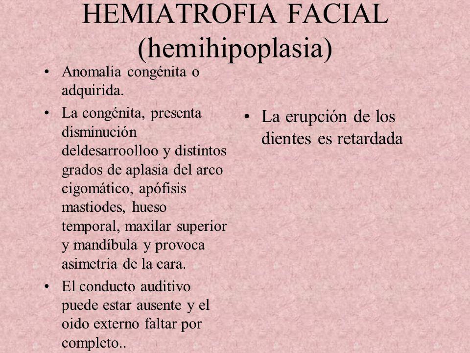 HEMEHIPERTROFIA CONGENITA DE LA CARA (gigantismo facial) Puede tomar la mitad del cuerpo o toda la parte. Partes comunes labios, fosas nasales, orejas