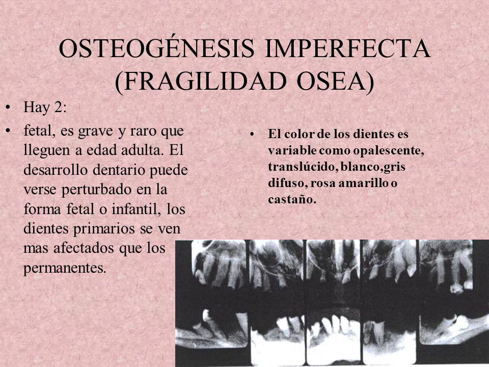 OSTEOPETROSIS( HUESOS MARMÓREOS, ENFERMEDAD DE ALBERS-SCHONBERG) Hay infecciones periapicales y periodontales en la parte inferior. Se clasifica en 2: