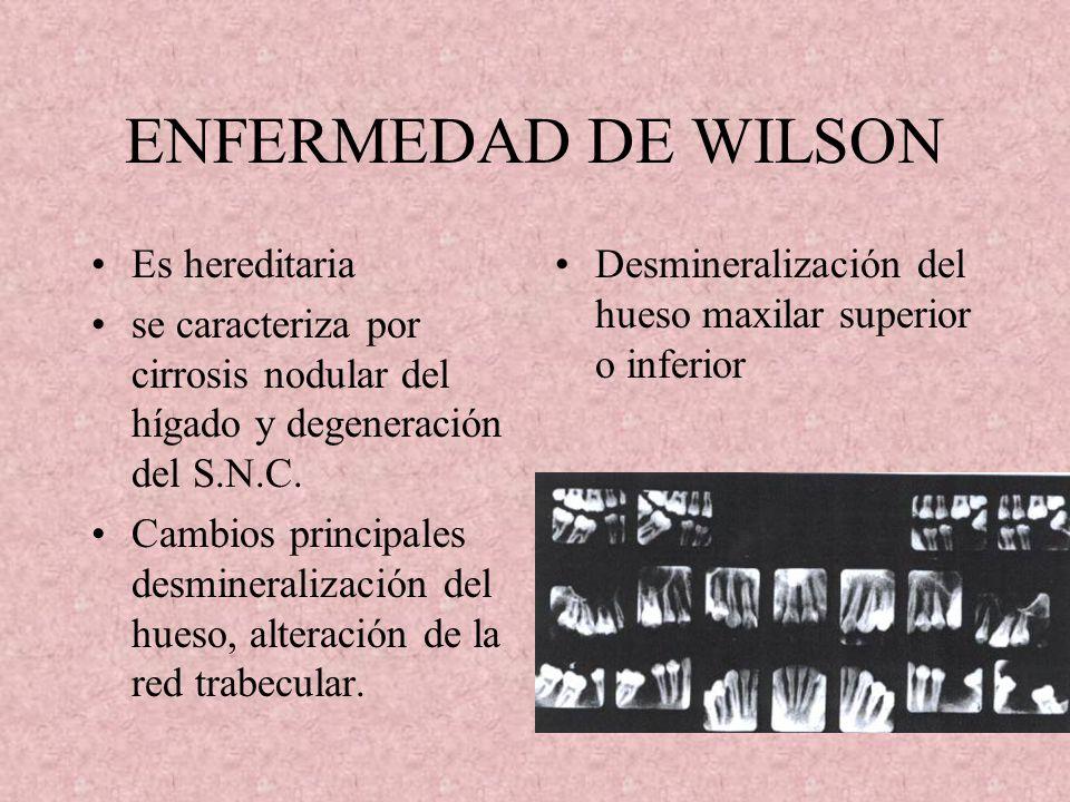 GLOBODONCIA EN EL SÍNDROME OTODENTARIO Es una anomalia morfológica de los dientes que se caracteriza por coronas grandes y globulosas y cámaras pulpar