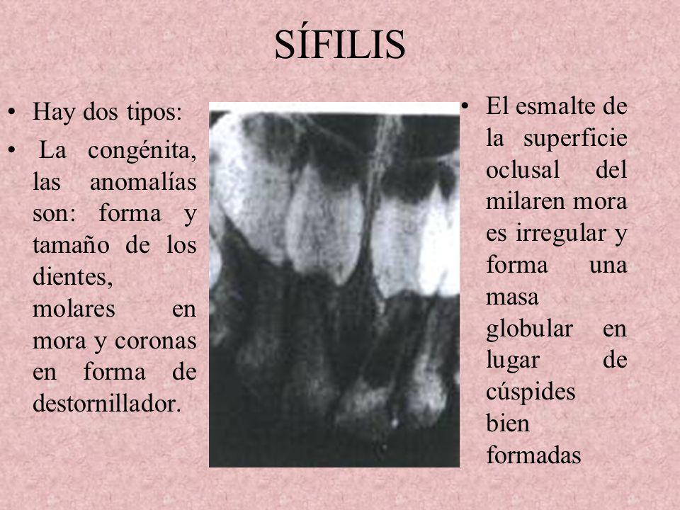 ENFERMEDAD DE WILSON Es hereditaria se caracteriza por cirrosis nodular del hígado y degeneración del S.N.C. Cambios principales desmineralización del