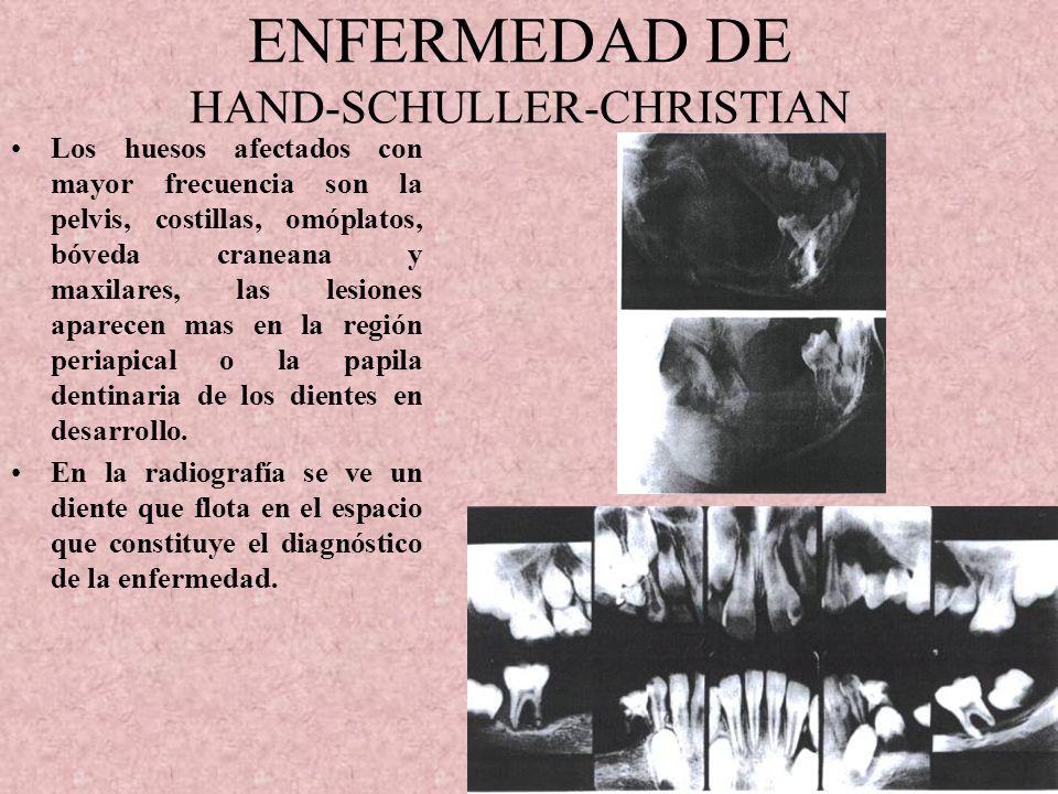 HISTIOCITOSIS X (RETICULOENDOTELIOSIS) Las manifestaciones orales son. Aumento de volumen de la encía, aflojamiento y perdida de los dientes, destrucc