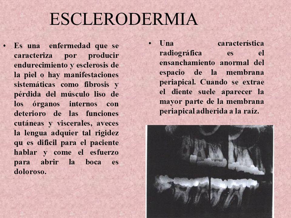 ENFERMEDAD DE PAGET Es una enfermedad del esqueleto que aparece por lo regular en edad adulto. En el primer periodo aparecen las lesiones osteolíticas