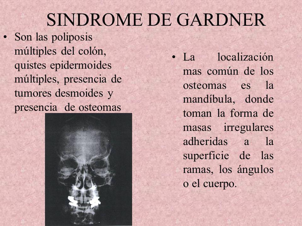 HIPEROSTOSIS CORTICAL INFANTIL Se caracteriza por aparición súbita, sensibilidad e inchazon de los tejidos blandos de la cara torax o extremidades, ha