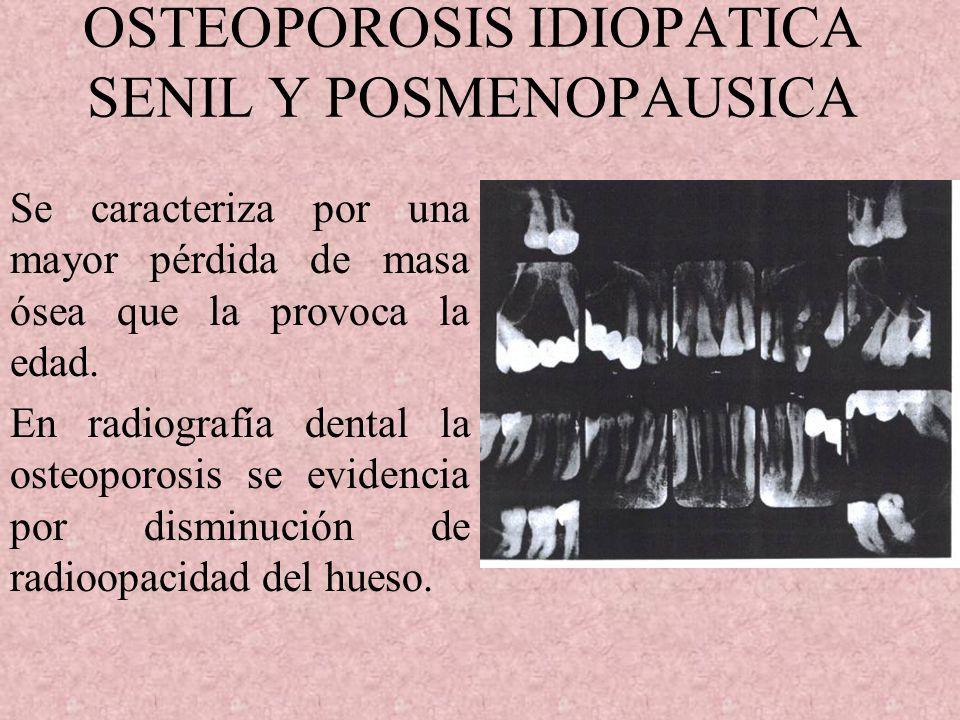 OSTEOPOROSIS IDIOPATICA SENIL Y POSMENOPAUSICA Se caracteriza por una mayor pérdida de masa ósea que la provoca la edad.