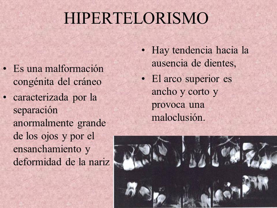 HIPERTELORISMO Es una malformación congénita del cráneo caracterizada por la separación anormalmente grande de los ojos y por el ensanchamiento y deformidad de la nariz Hay tendencia hacia la ausencia de dientes, El arco superior es ancho y corto y provoca una maloclusión.