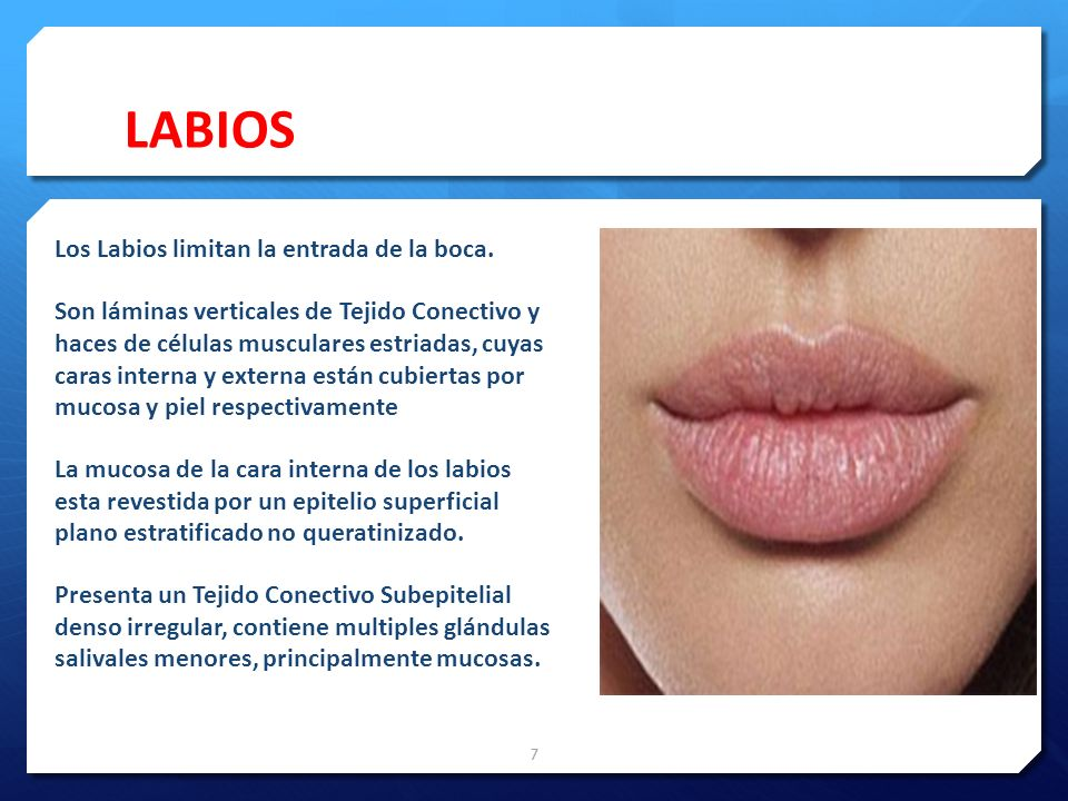 LABIOS La mucosa de la cara interna de los labios esta revestida por un epitelio superficial plano estratificado no queratinizado.