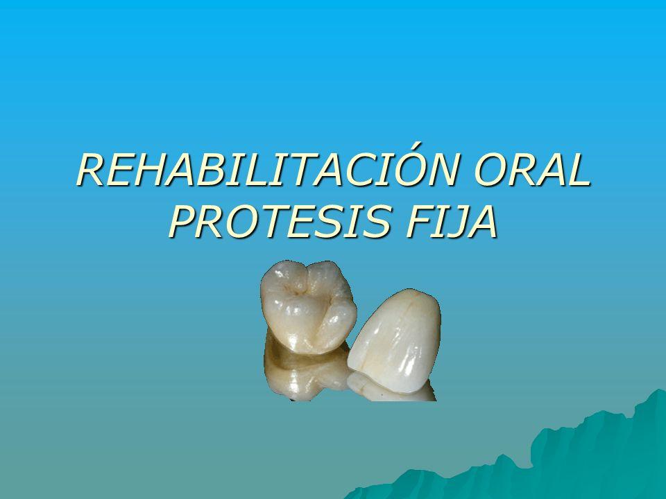 REHABILITACIÓN ORAL PROTESIS FIJA
