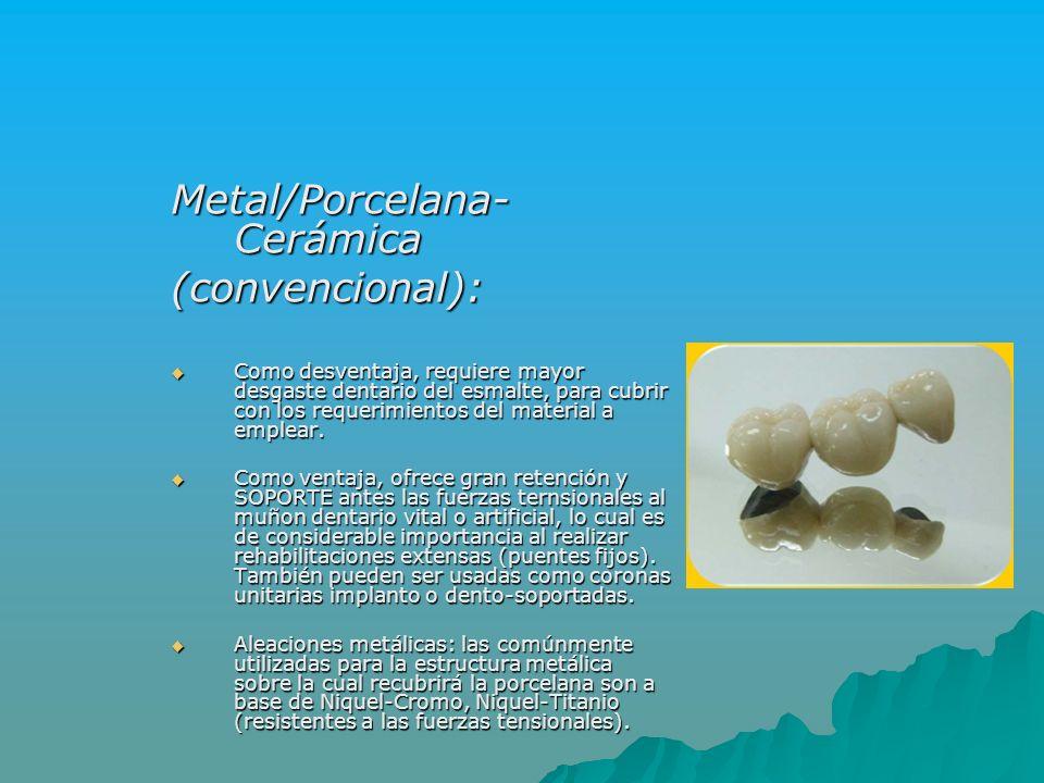 Metal/Porcelana- Cerámica (convencional): Como desventaja, requiere mayor desgaste dentario del esmalte, para cubrir con los requerimientos del materi