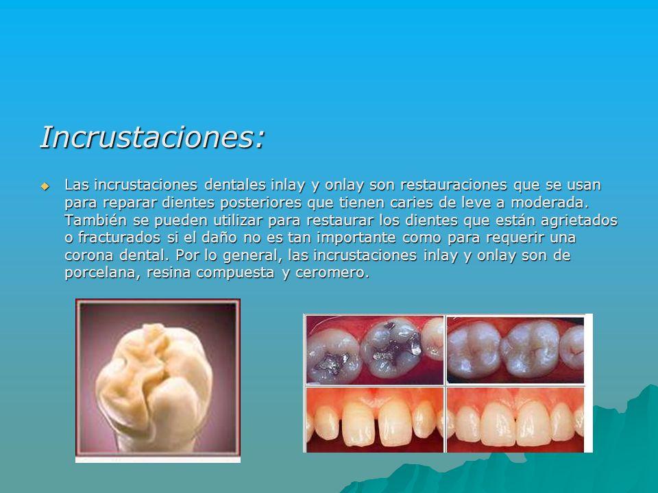 Incrustaciones: Las incrustaciones dentales inlay y onlay son restauraciones que se usan para reparar dientes posteriores que tienen caries de leve a