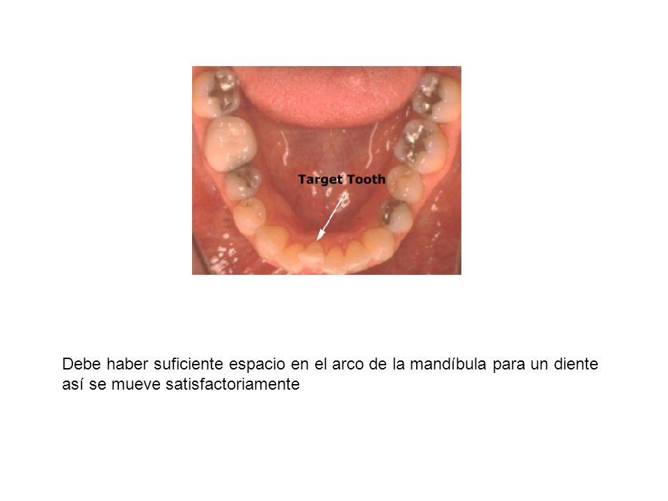 Debe haber suficiente espacio en el arco de la mandíbula para un diente así se mueve satisfactoriamente