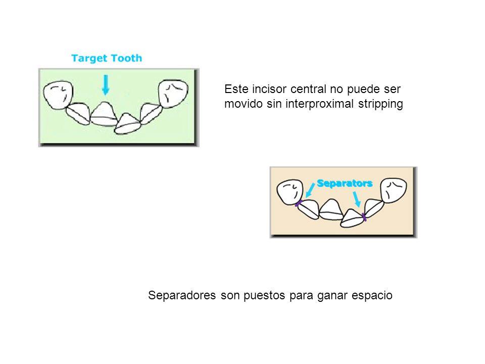 Este incisor central no puede ser movido sin interproximal stripping Separadores son puestos para ganar espacio