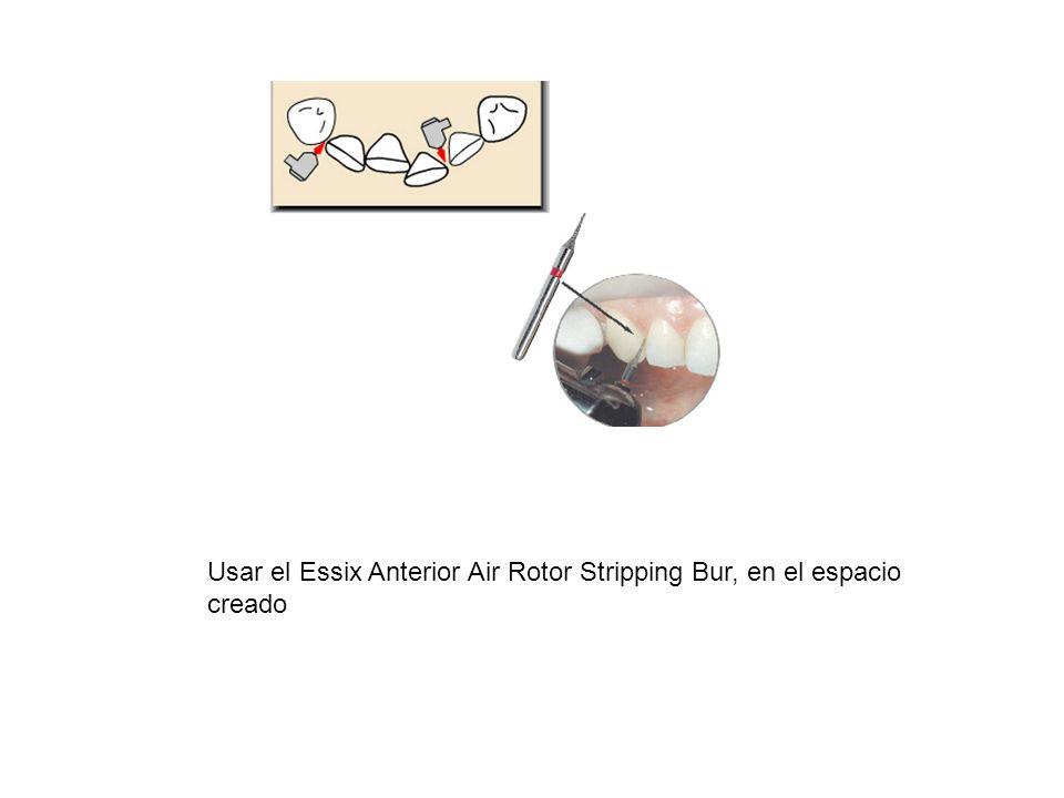 Usar el Essix Anterior Air Rotor Stripping Bur, en el espacio creado