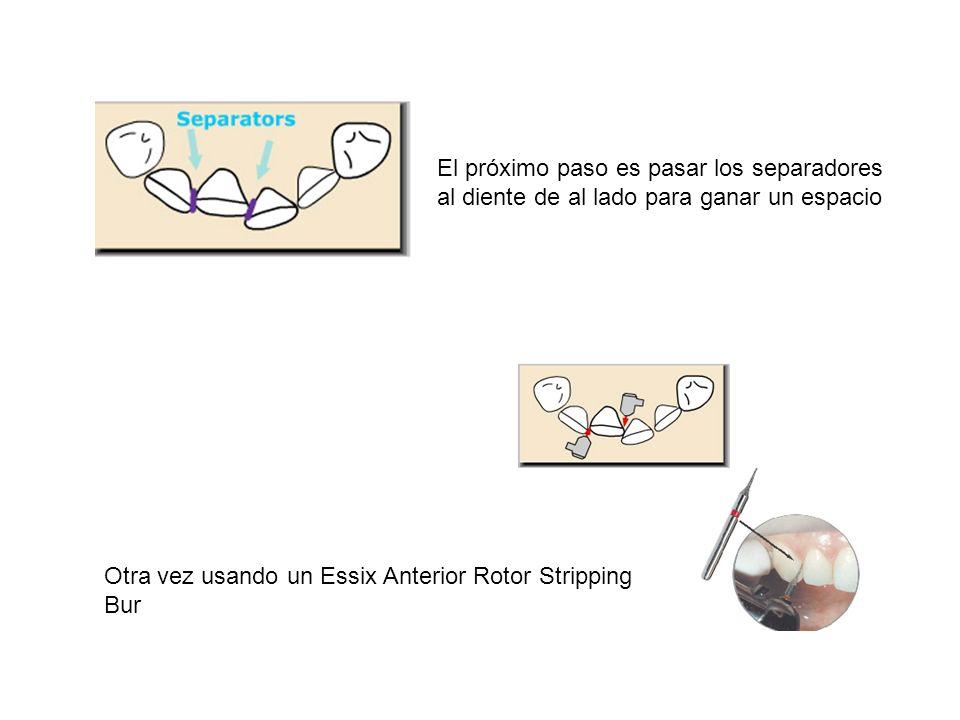 El próximo paso es pasar los separadores al diente de al lado para ganar un espacio Otra vez usando un Essix Anterior Rotor Stripping Bur