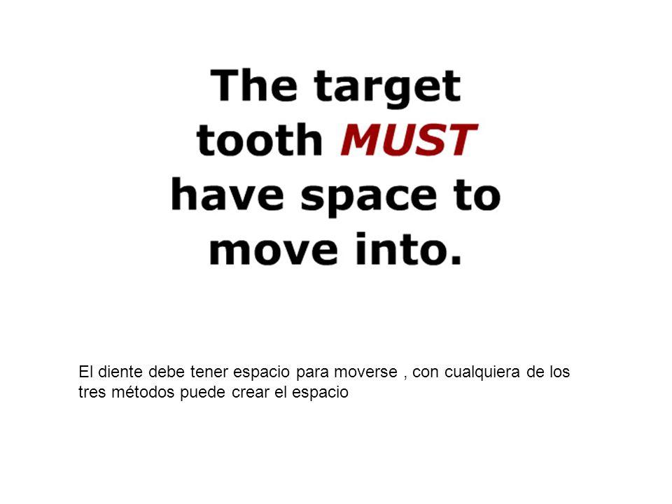 El diente debe tener espacio para moverse, con cualquiera de los tres métodos puede crear el espacio