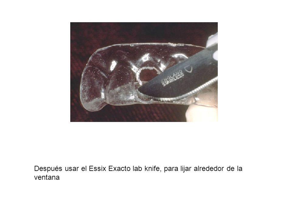 Después usar el Essix Exacto lab knife, para lijar alrededor de la ventana