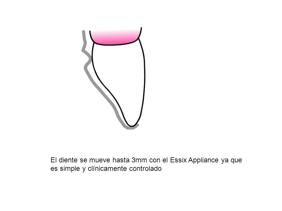 El diente se mueve hasta 3mm con el Essix Appliance ya que es simple y clínicamente controlado