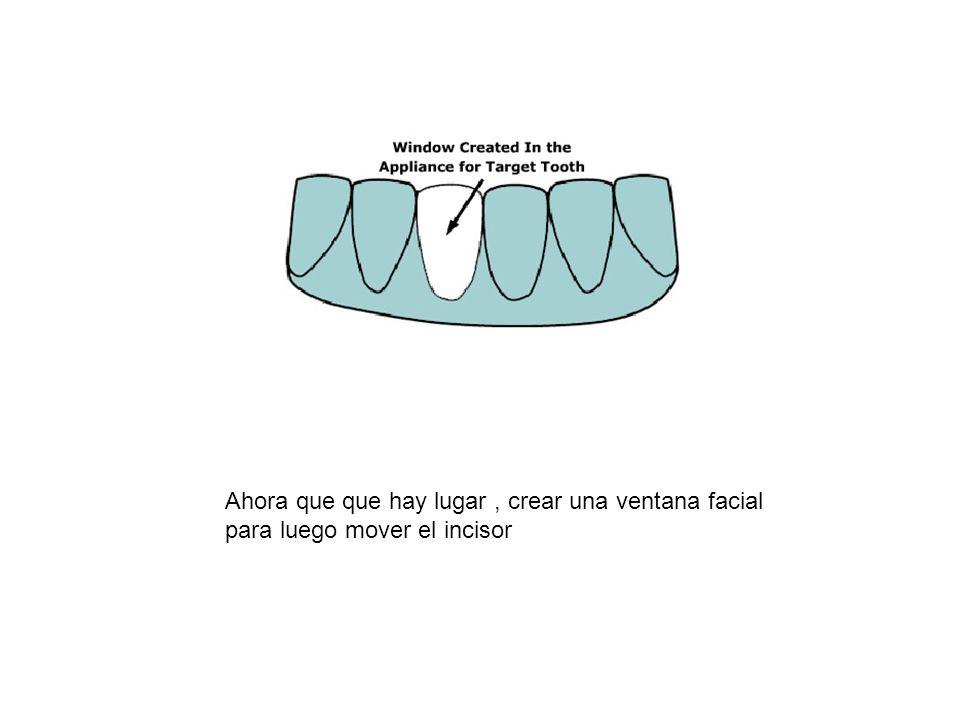 Ahora que que hay lugar, crear una ventana facial para luego mover el incisor
