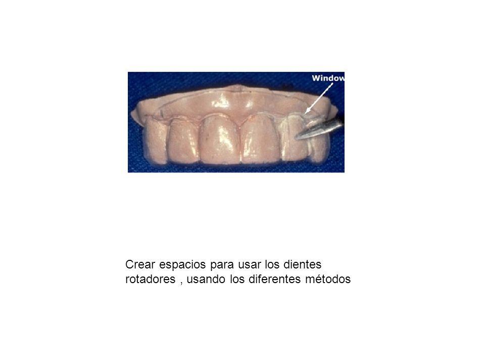 Crear espacios para usar los dientes rotadores, usando los diferentes métodos